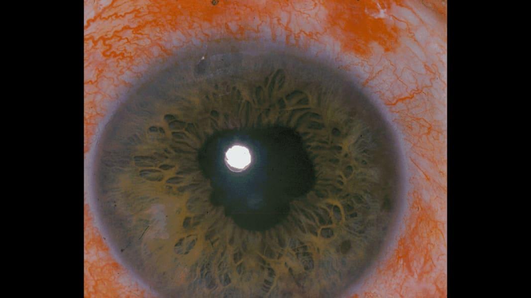 09 eye predicts health conditions diabetes