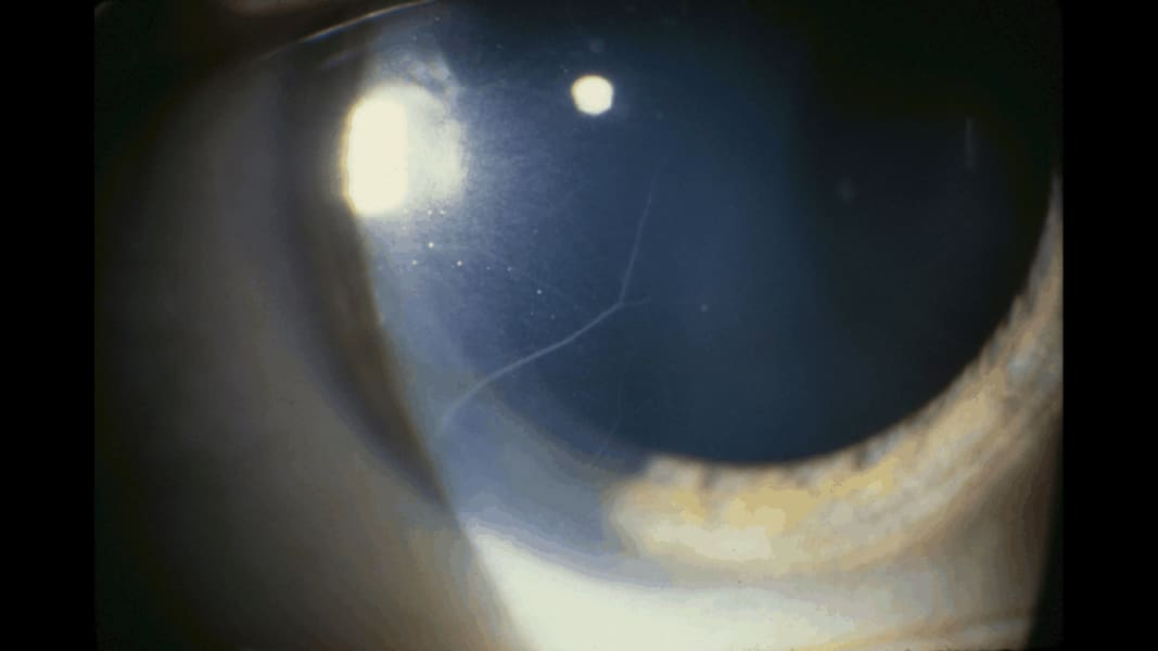 10 eye predicts health conditions thyroid disease