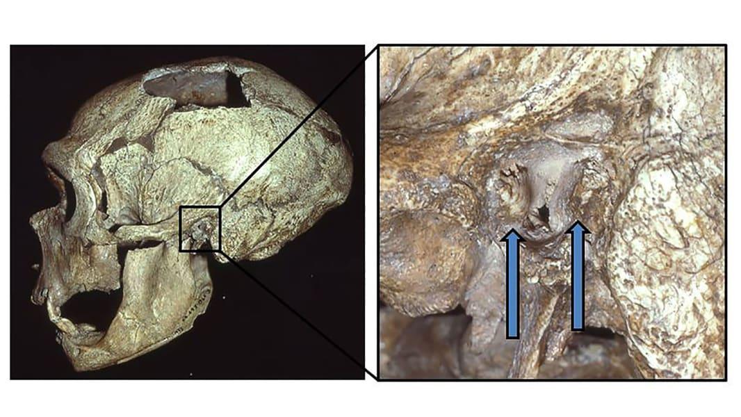 La Chapelle aux Saints Neandertal skull