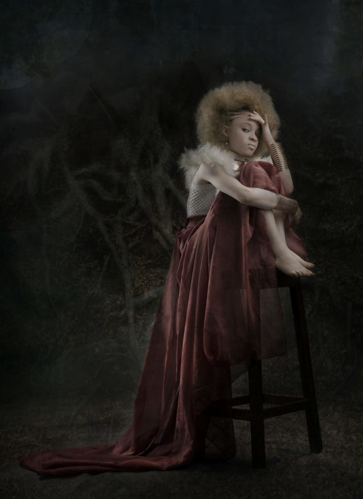 Efemena Ewhero is photographed in the dark here to depict how persons with albinism are often left wondering in the dark why people misjudge them based on their skin.