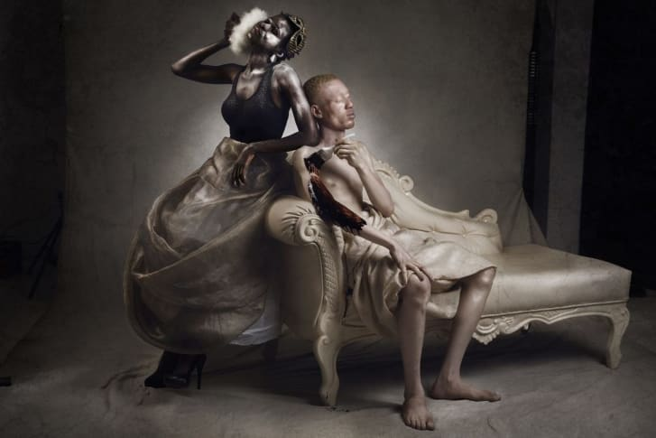 Taiwo Olateju (R) and model, Busayo Durojaiye tackle the topic of skin bleaching and how ironic it is when it comes to albinism. People with perfectly healthy skin are willing to forcefully reduce the level of melanin in their body, while persons with albinism would gladly increase their own.
