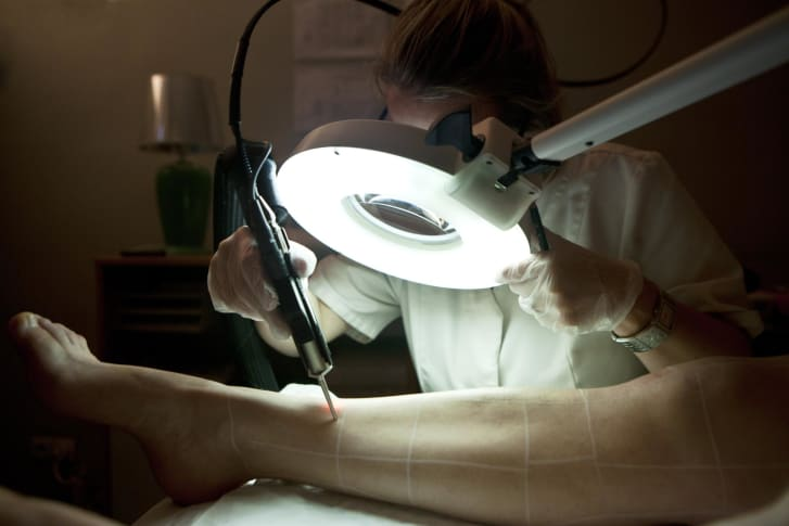 In Paris, a patient undergoes a hair removal session using an Alexandrite laser.