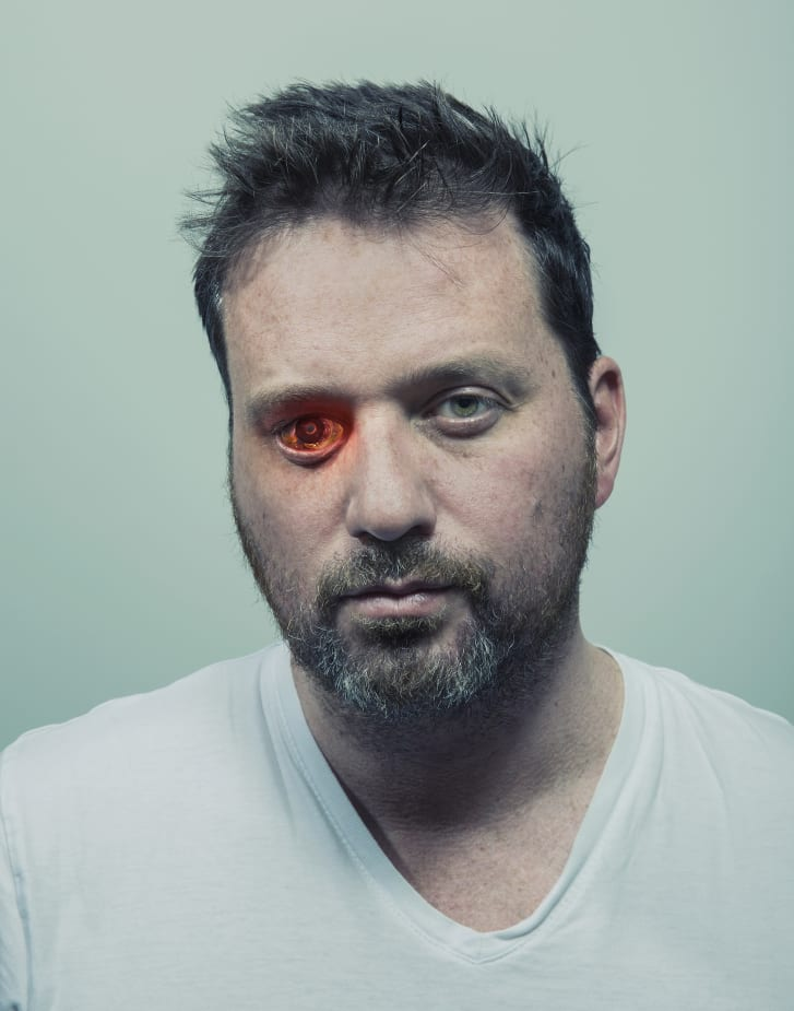 "Describing himself as an ""eyeborg,"" Rob Spence installed a wireless video camera in place of his right eye."