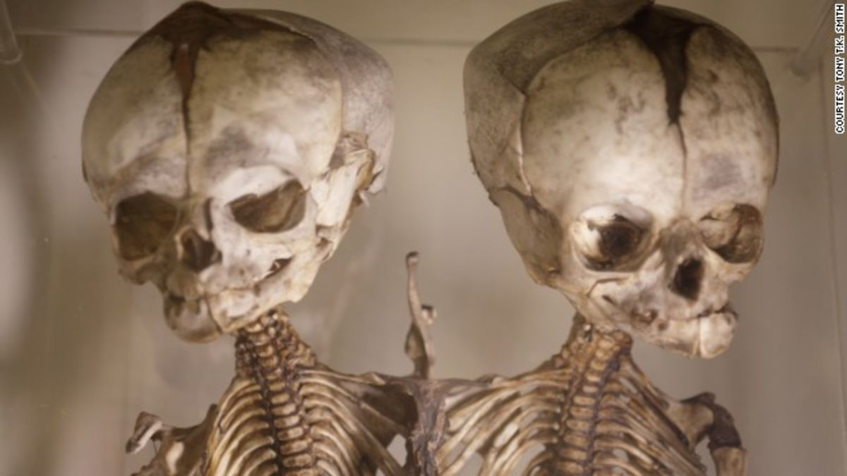 health musuem The latest tweets from the health museum (@thehealthmuseum) it's all about you mission: to foster wonder and curiosity about health, medical science & the human body.